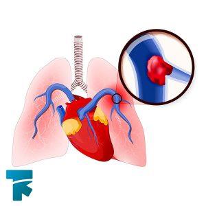 بیماری آمبولی ریه چیست؟